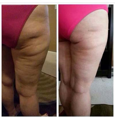 cellulite disappear weight loss